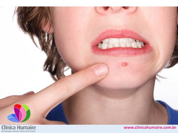http://clinicahumaire.com.br/wp-content/uploads/2016/10/acne-dr-caio-rosa-humaire.jpg