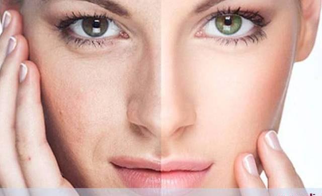 http://clinicahumaire.com.br/wp-content/uploads/2017/02/como-tratar-cicatrizes-de-acne-dr-caio-rosa-humaire-640x390.jpg